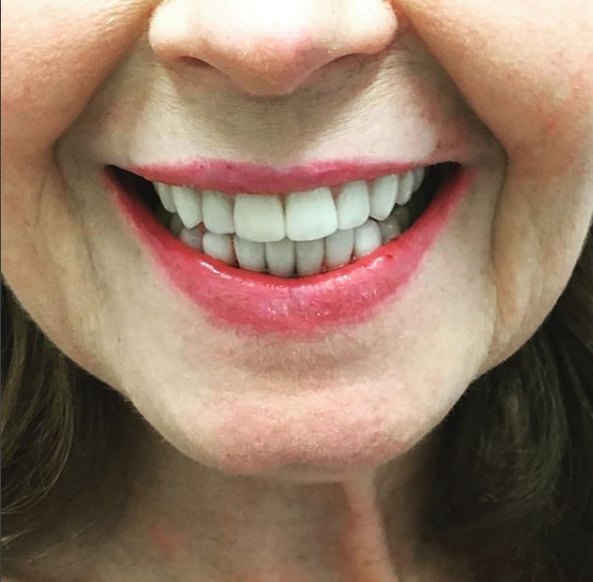 Checkup, Scaling and Cleaning (Limited Time Only) - We want to deliver more smiles to our neighborhood. Treat your teeth to a professional dental examination with a scale and cleaning to remove plaque and stains.