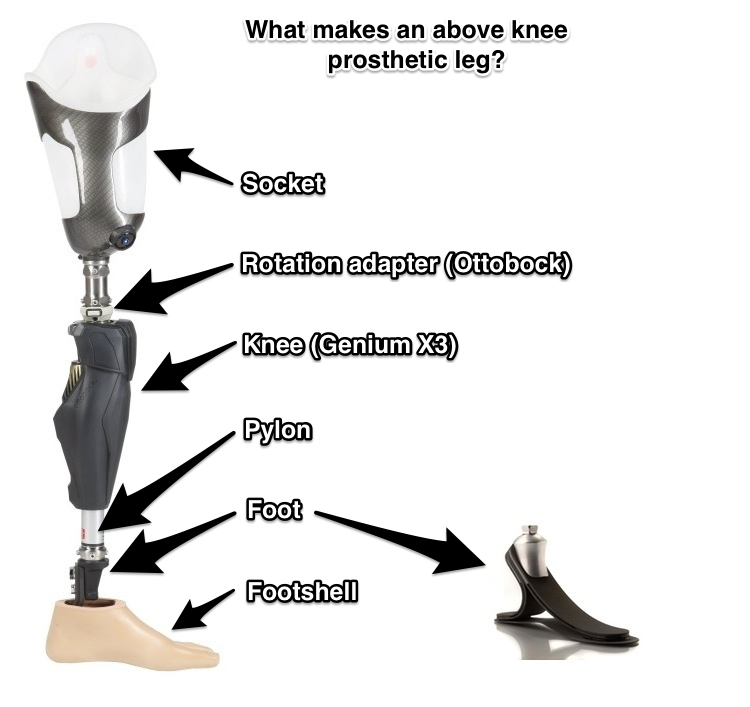 types of prothesis