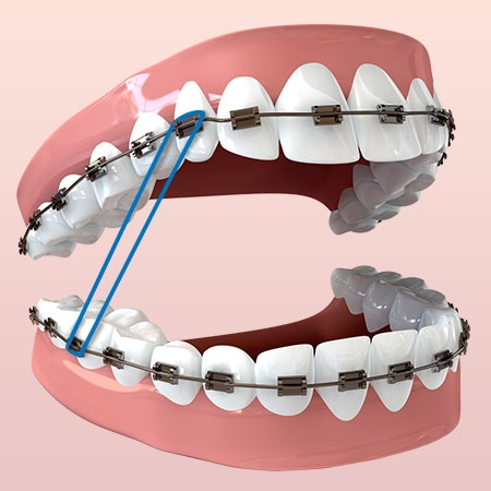 Orthodontic treatment coupled with rubber-band wear, like this Class II elastic pattern, help align your jaws and correct your bite.