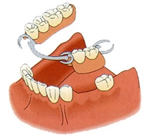 denture-clinic-victoria-bc-5.jpg