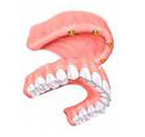Palate cut out of upper denture