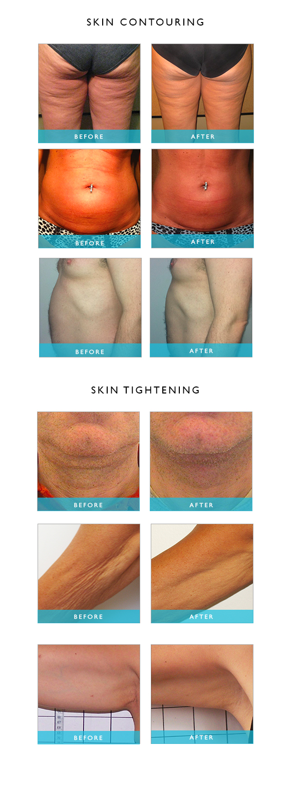 Skin_contouring_tighening_cellulite_reduction_results