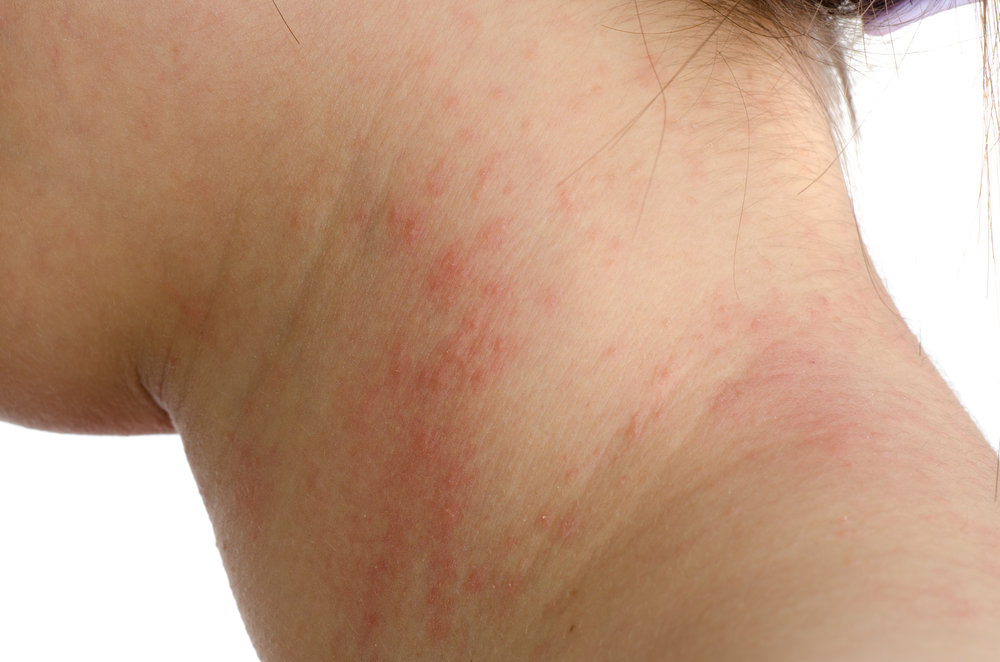 This type of skin rash is classifed as a mild allergic reaction.
