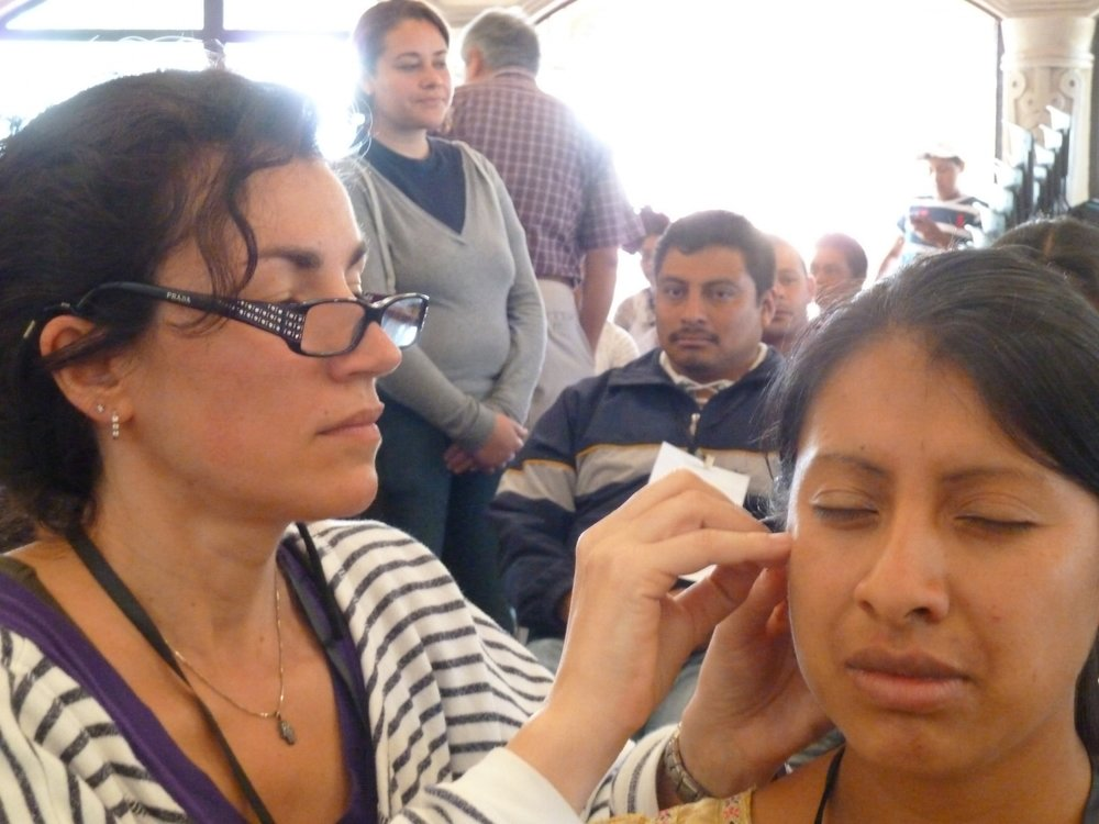 Teo demonstrates auricular treatment