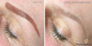 Phiremoval - Remove Old Permanent Makeup and unwanted tattoo with the newest non-surgical technique