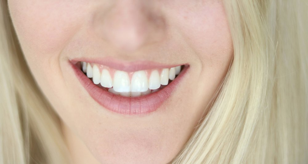 After 1 week of whitening