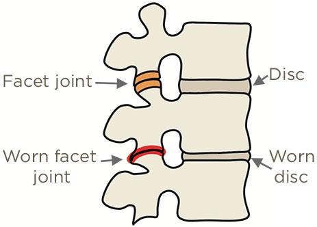 Worn facet joint