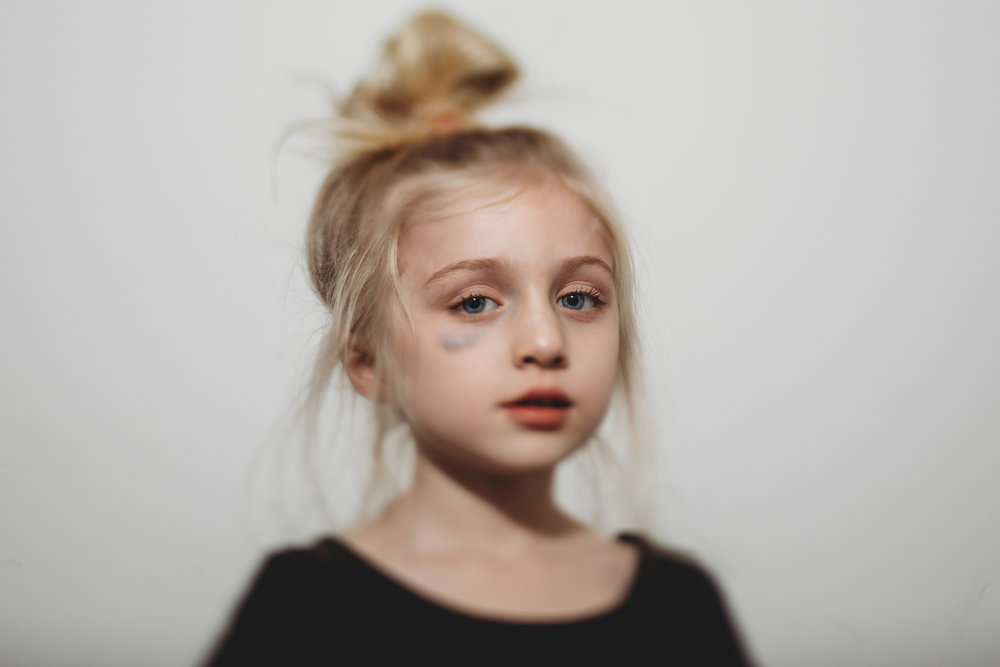 hello-olivia-photography-long-island-photographer-lifestyle-child-black-eye-messy-bun.jpg