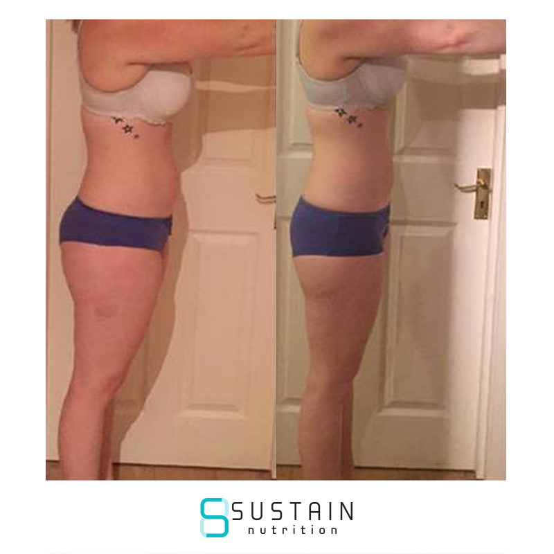Jaimie - ''Prior to joining the Sustain train I had done the body coach, which I personally didn't find as effective as other people, which In a way really unmotivated me and I thought there was no way I could get to where I wanted to, as others had done well whereas I felt like I had failed. I felt very disappointed with my results, I didn't feel like I had gained any confidence and was still not comfortable within my own skin.. I then found Sustain and was so pleased I did, they offer a great plan, great coaches who actually engage with you and really care about your goals and helping you achieve them.When doing BC we were introduced to weights which I had never done, and I didn't get any sort of guidance, whereas with Sustain, when I wanted to try weights again, Joe helped me and gave me some great tips and advice, and I no longer felt nervous with weights but really started enjoying them! The plan was easy to follow, and easy to maintain and it's very sustainable. Post Sustain I feel confident, and for the first time ever I'm actually comfortable in my own skin. I'm able to maintain my results and hope to achieve even more but for now I am very happy, I am the healthiest, fittest and happiest I've been in ages and Sustain had a lot to contribute to that! So thanks guys for all you hard work, guidance and motivation!''