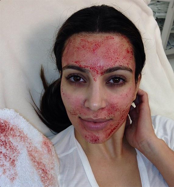 Kim Kardashian Vampire Blood Facial