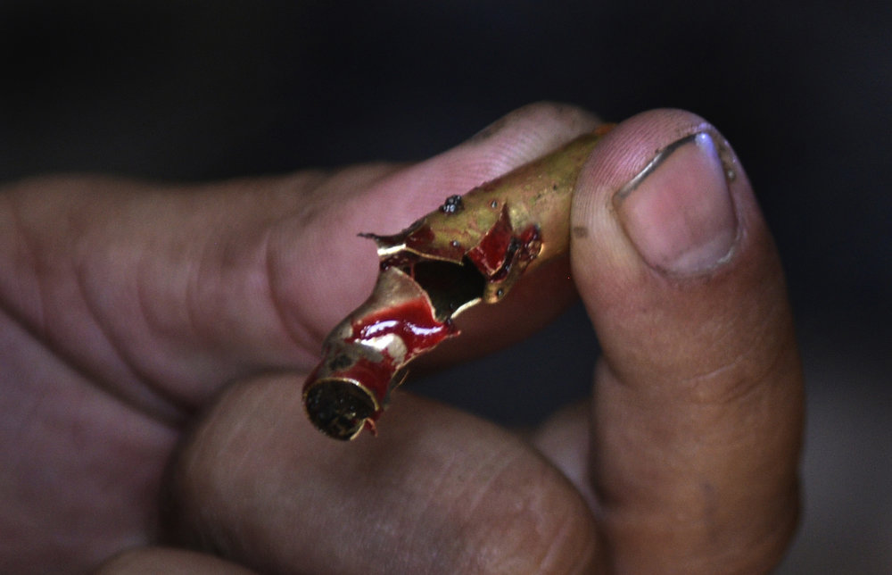 A bloody bullet found while providing emergency trauma care in Iraq