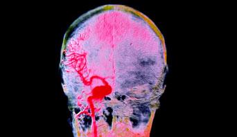 brain-aneurysm_342x198_M1360004