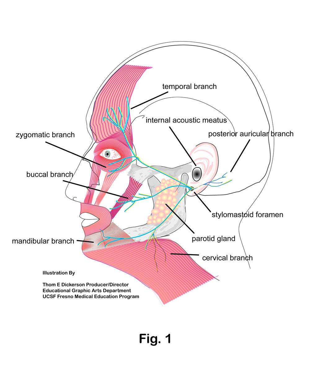 Facial Cranial NervesFinal.jpg