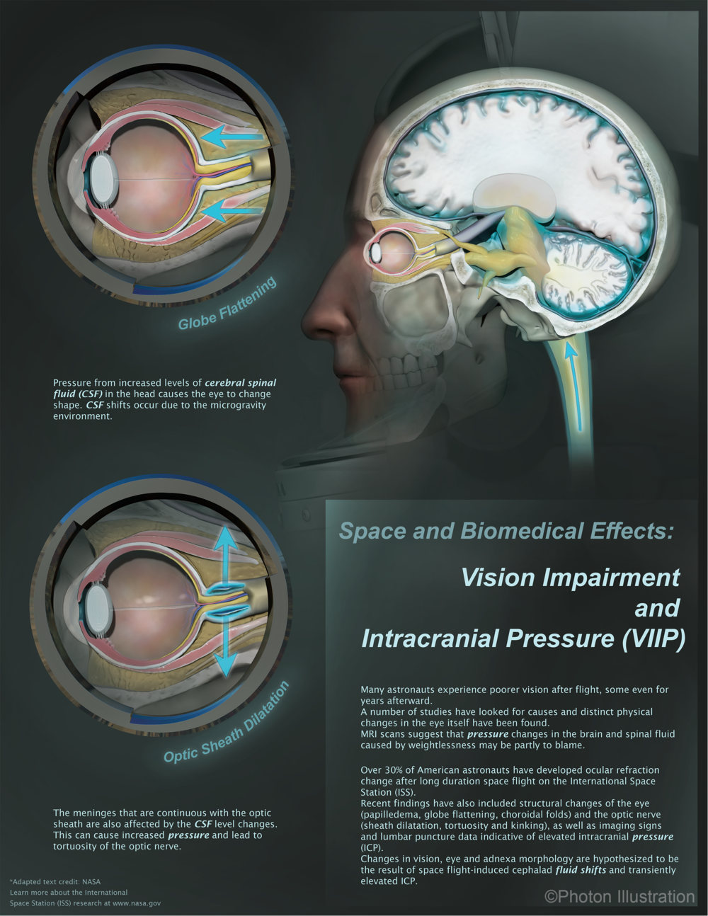 Vision Impairment and Intracranial Pressure