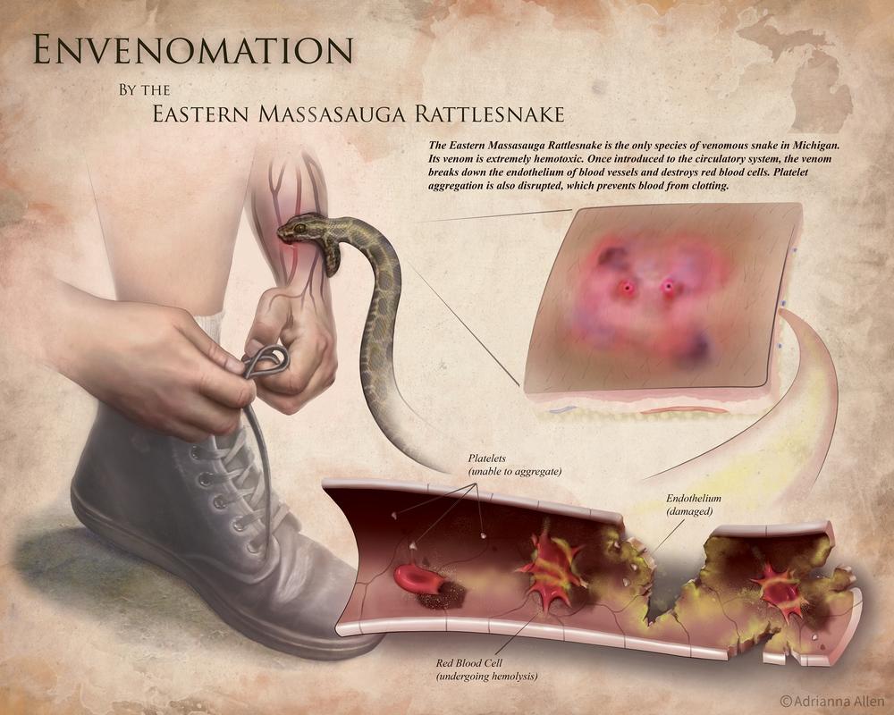 Envenomation by Eastern Massasauga Rattlesnake