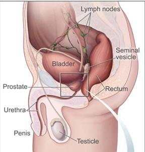 rawatan-penyakit-prostat.jpg
