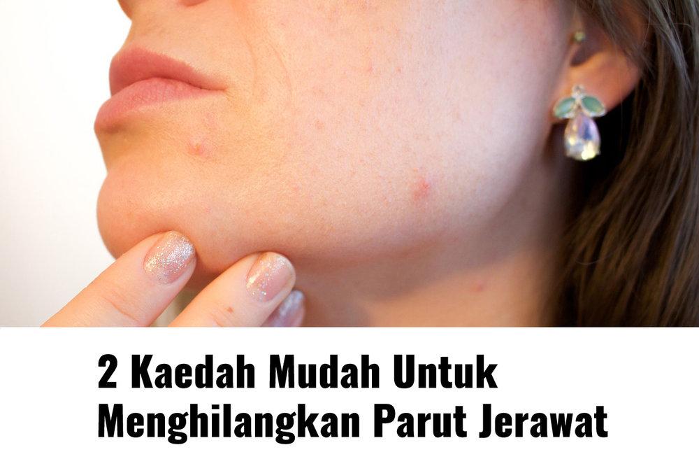 acne-1606765_1280.jpg