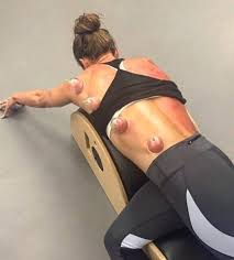 Athlete During 'Cupping' Treatment