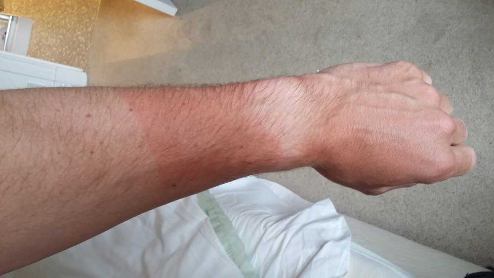 The classic arm-warmer watch tan look