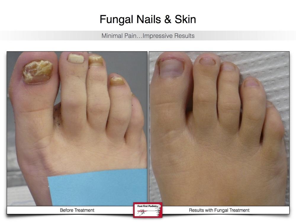 Fungal Nails & Skin 02.16 20.jpg