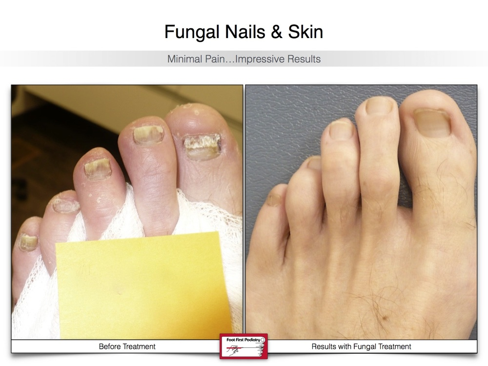 Fungal Nails — Foot First Podiatry Centers