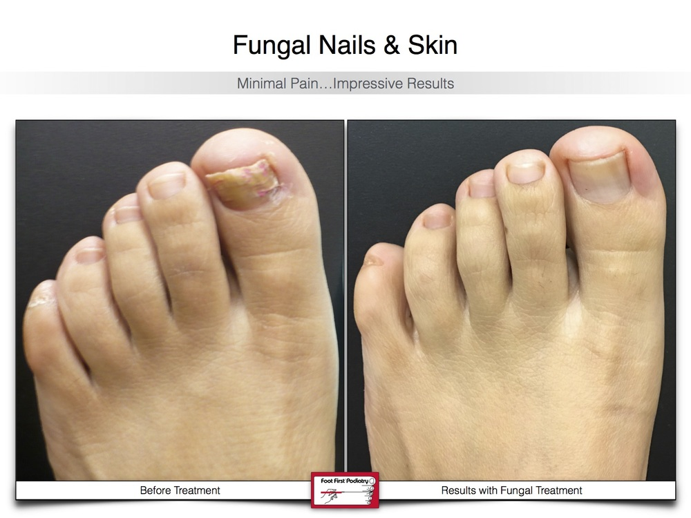 Fungal Nails & Skin 02.16 26.jpg