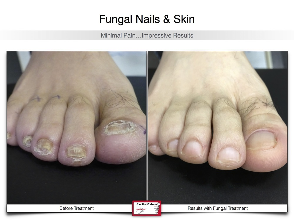 Fungal Nails & Skin 02.16 27.jpg