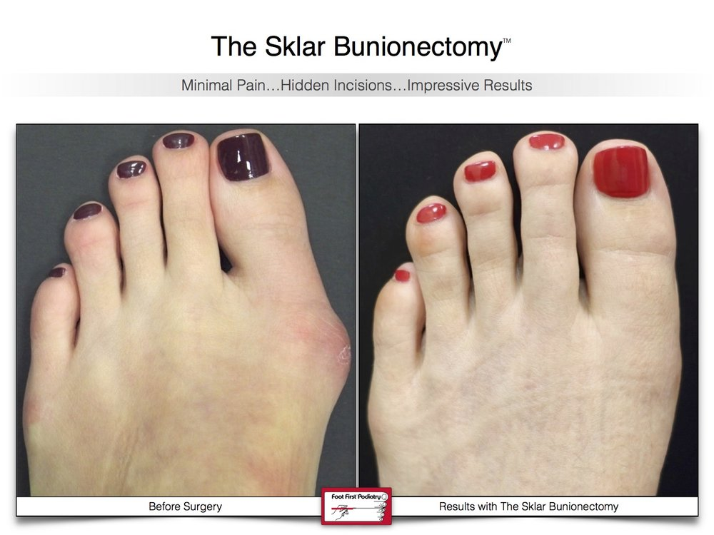 Sklar Bunionectomy 1 | Website 02.17 .jpg