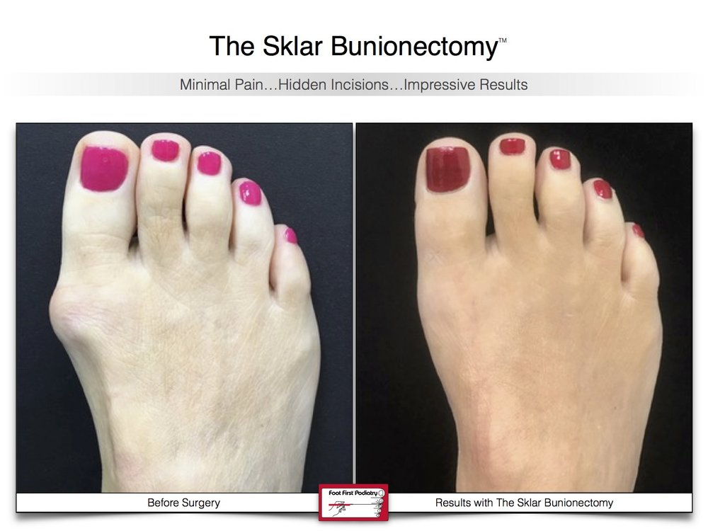 Sklar Bunionectomy 5 | Website 02.17 .jpg