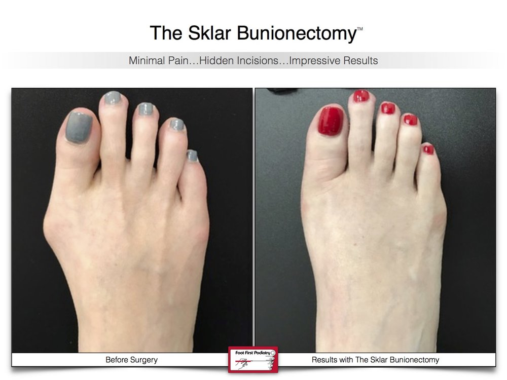 Sklar Bunionectomy 8 | Website 02.17 .jpg