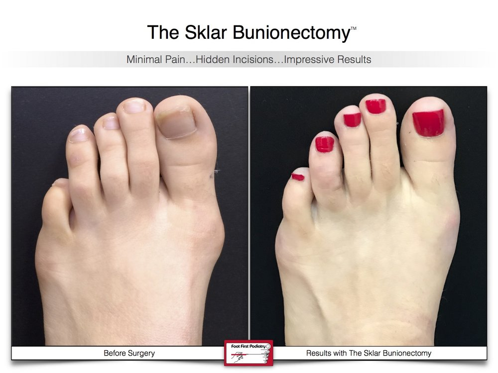 Sklar Bunionectomy 9 | Website 02.17 .jpg