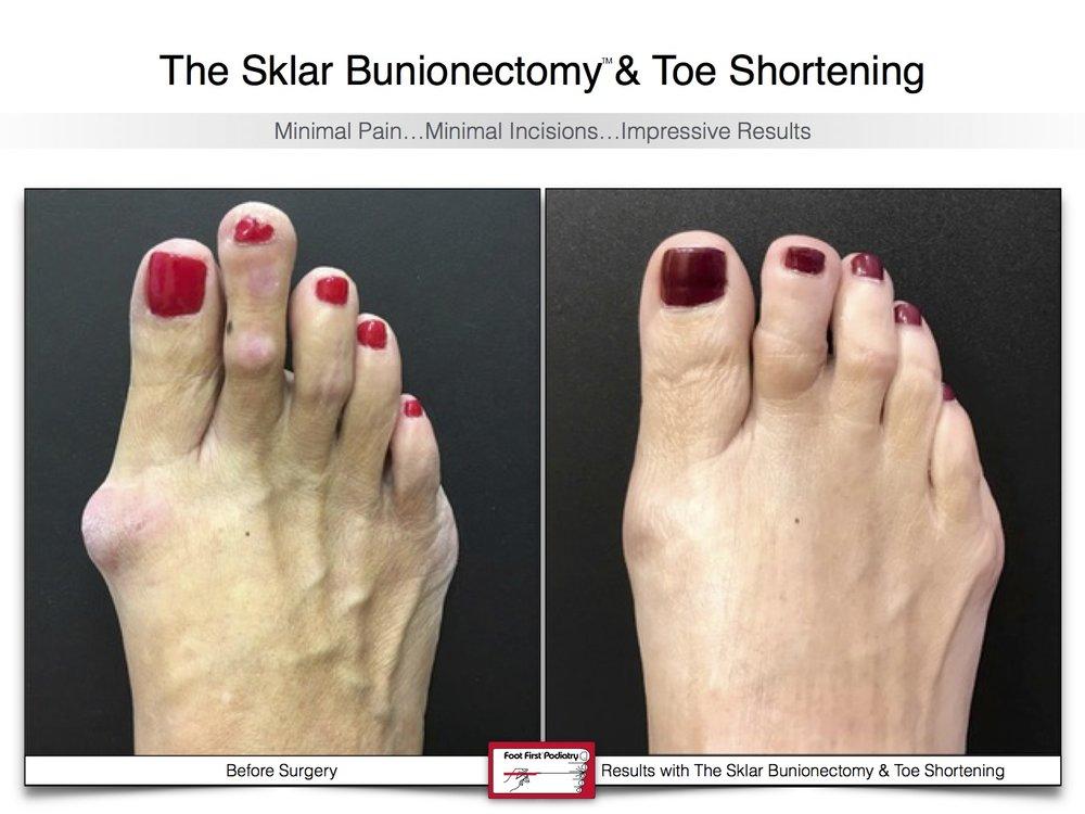 Sklar Bunionectomy & Toe Shortening 12 | Website 02.17 .jpg