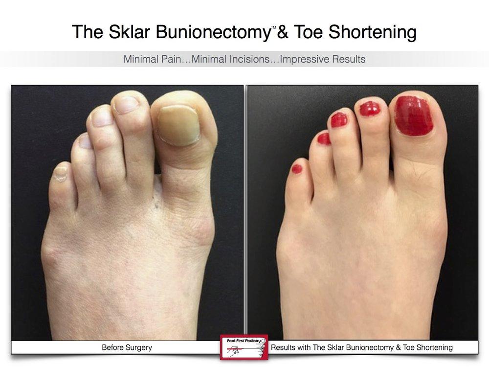 Sklar Bunionectomy & Toe Shortening 13 | Website 02.17 .jpg