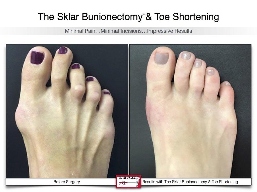 Sklar Bunionectomy & Toe Shortening 14 | Website 02.17 .jpg