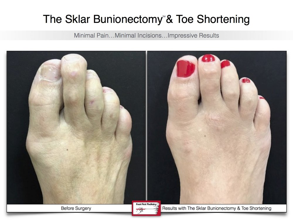 Sklar Bunionectomy & Toe Shortening 17 | Website 02.17 .jpg