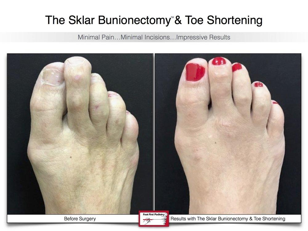 Sklar Bunionectomy & Toe Shortening 17 | Website 02.17 .jpg