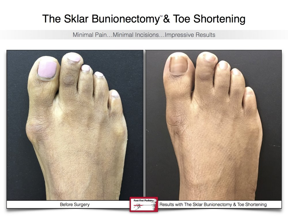 Sklar Bunionectomy & Toe Shortening 16 | Website 02.17 .jpg