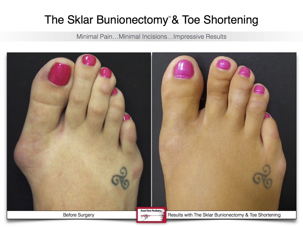 Sklar Bunionectomy & Toe Shortening 19 | Website 02.17 .jpg
