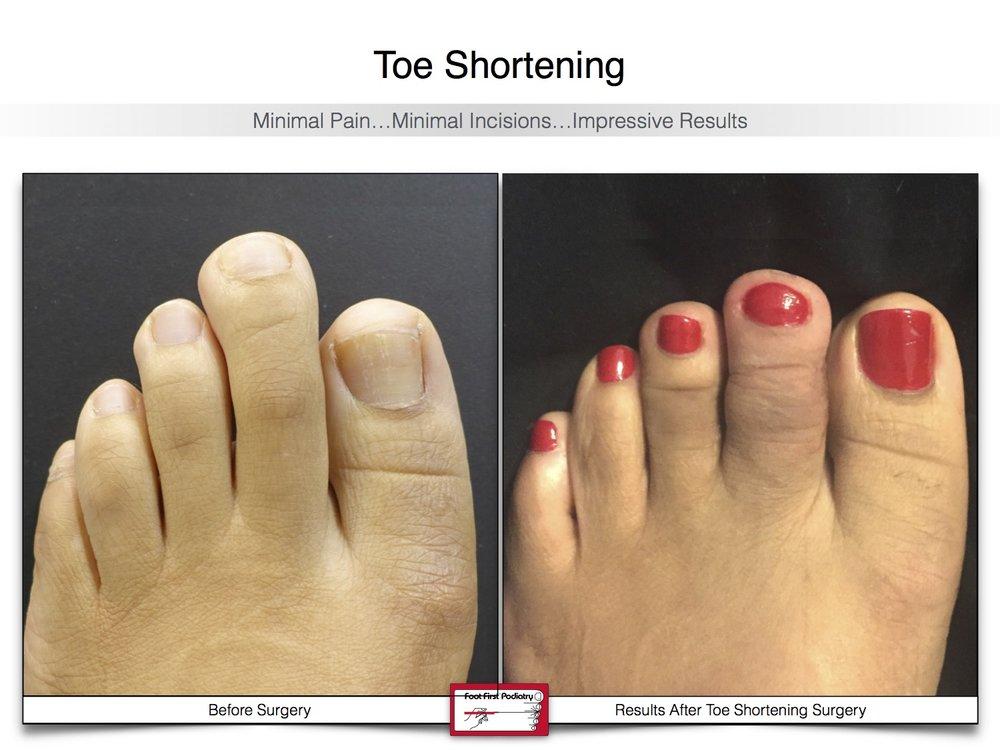 Toe Shortening 20 | Website 02.17 .jpg