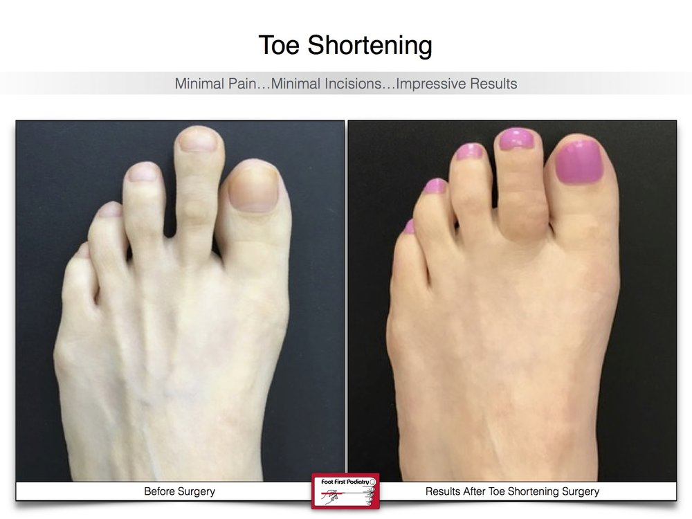 Toe Shortening 22 | Website 02.17 .jpg