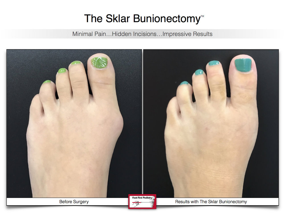 Results You Want to See | Sklar Bunionectomy 44.jpg