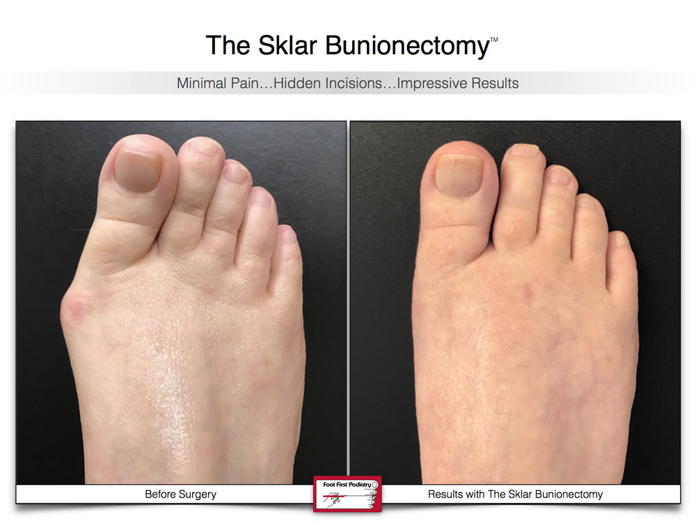 Results You Want to See | Sklar Bunionectomy 45.jpg