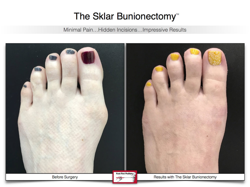 Results You Want to See | Sklar Bunionectomy 41.jpg