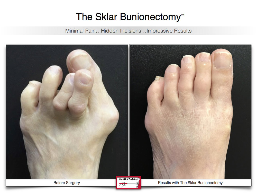 Results You Want to See | Sklar Bunionectomy  38.jpg