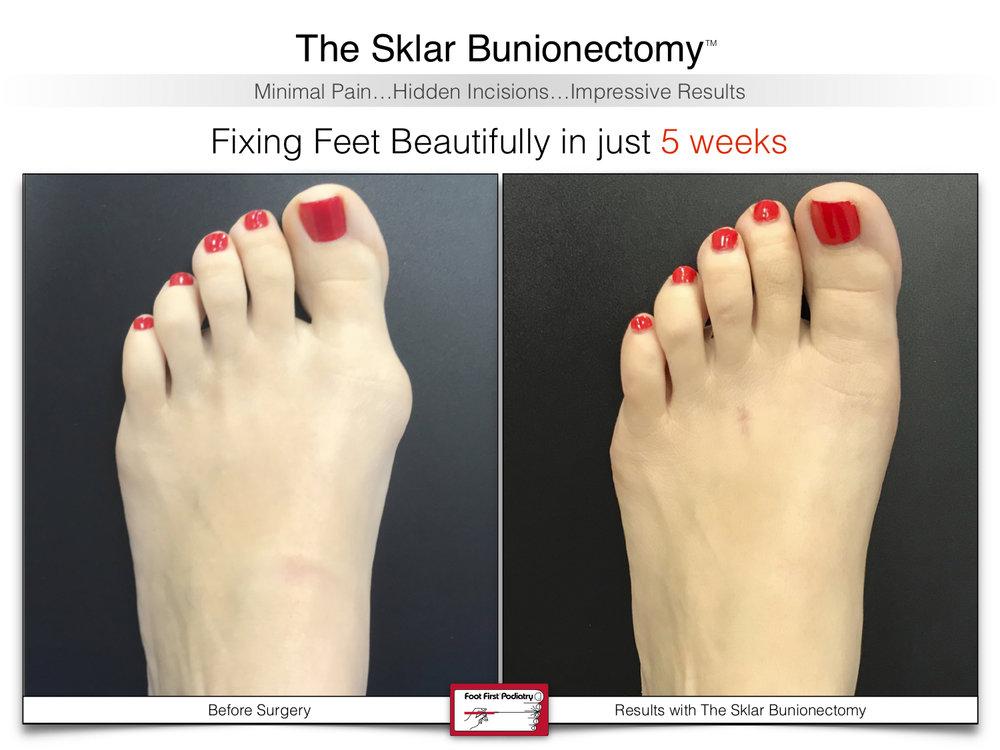 The Sklar Bunionectomy 2 | www.footfirst.com .jpg