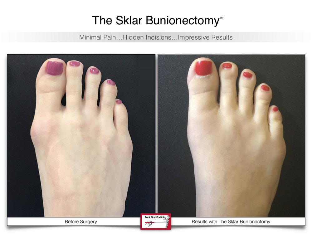 The Sklar Bunionectomy 5 | www.footfirst.com .jpg