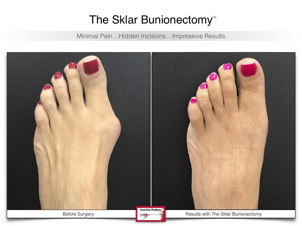 The Sklar Bunionectomy 1 | www.footfirst.com .jpg