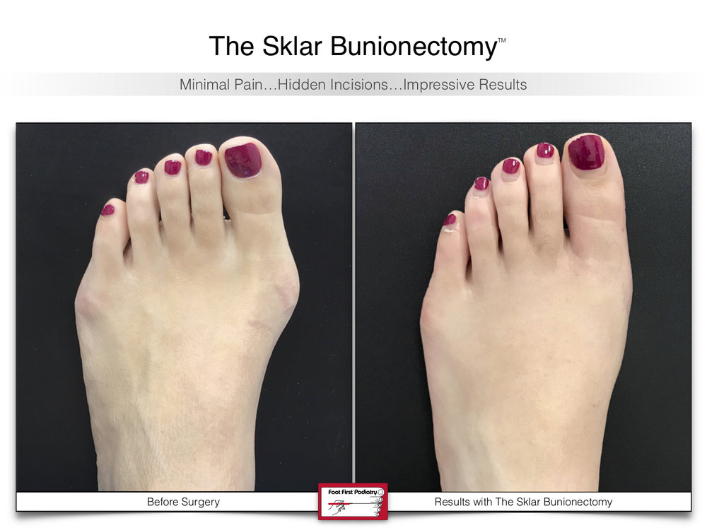 The Sklar Bunionectomy 3 | www.footfirst.com.jpg