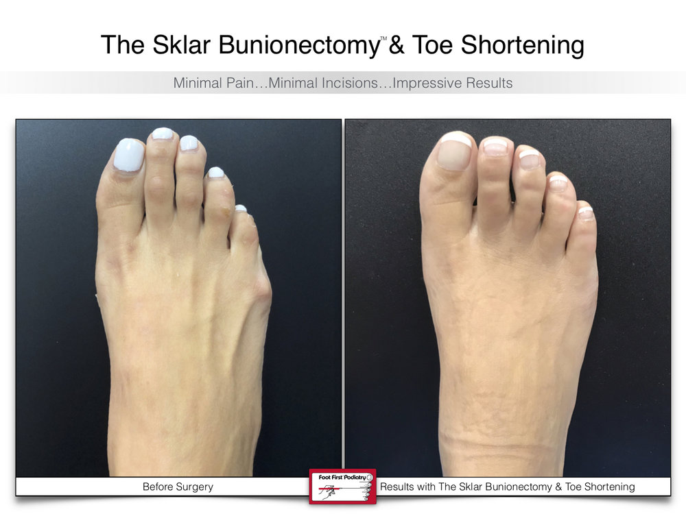 www.footfirst.com | Cosmetic Bunion and Toe Shortening Surgery 107.jpg