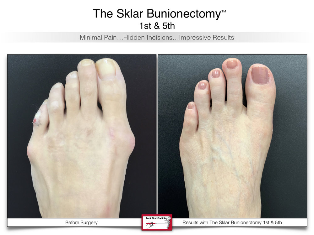 www.footfirst.com   Cosmetic Bunion and Toe Shortening Surgery 109.jpg